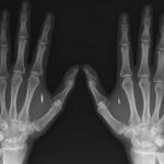 """Vajominge pagal """"Obamacare"""" programą privaloma įsidiegti RFID lustus"""
