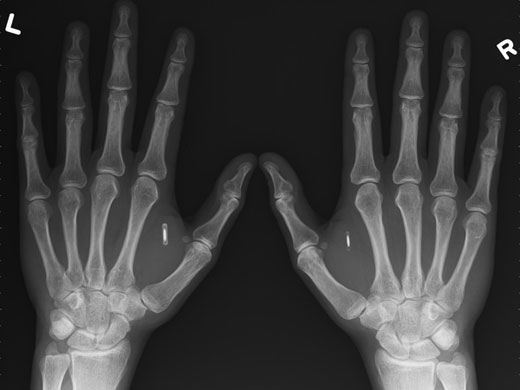 verichip_implant